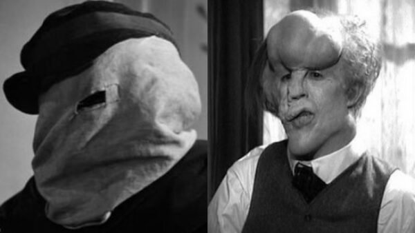 John Merrick The Elephant Man