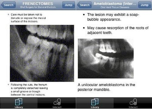 lexicomp iphone dental app