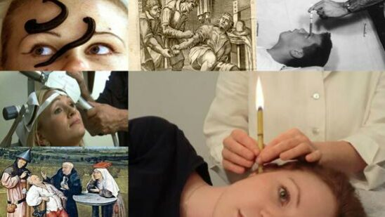 ancient Medical Practices